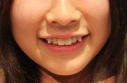 付け八重歯施術写真2