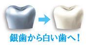 「銀歯から白い歯へ!」