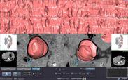 大腸CTC2