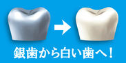 銀歯から白い歯へ!