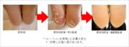 「ベビーフット」を使用した足裏の変化