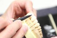 歯科技工物1