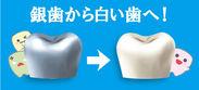 銀歯から白い歯へ! ロゴ