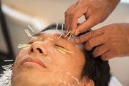 顔の鍼施術