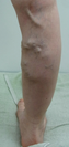 下肢静脈瘤 1