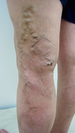 下肢静脈瘤 2