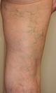 下肢静脈瘤 3