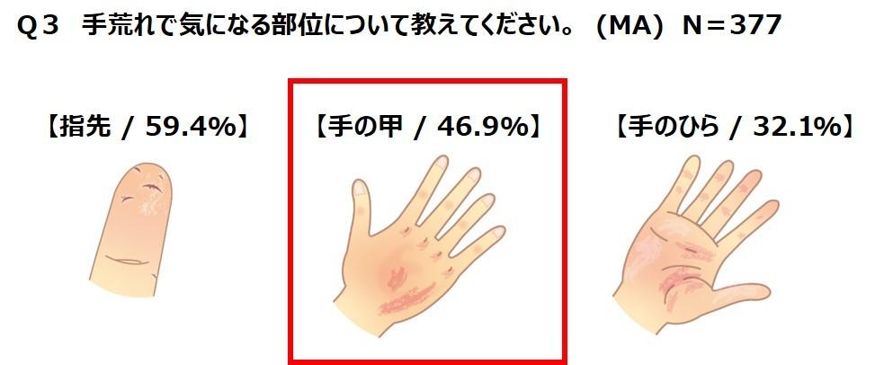 治し 方 指 ぱっくり 割れ 指先ぱっくり割れの原因と治し方,予防方法や絆創膏の効果は?  