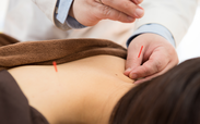 日本の鍼治療は細い鍼を使う