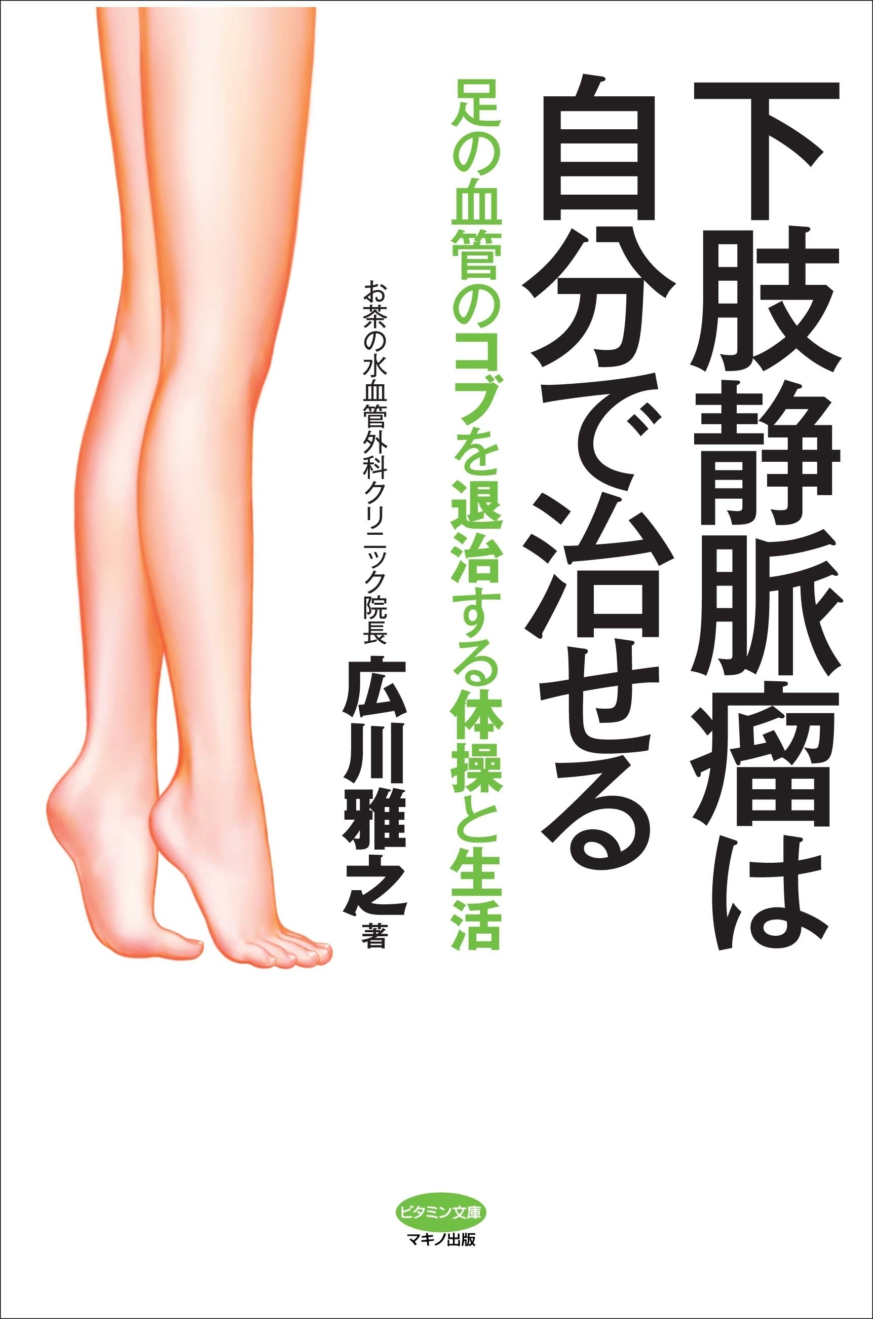 自分 治す 下肢 で 静脈 瘤